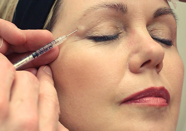 Инъекция препарата Ботокс для устранения морщин в области глаз.