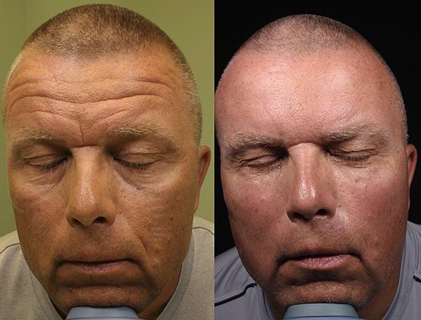 Действие ботулотоксина приводит к расслаблению мышц, вследствие чего морщины разглаживаются.
