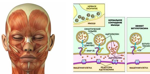 Действие ботулотоксина на мышцы