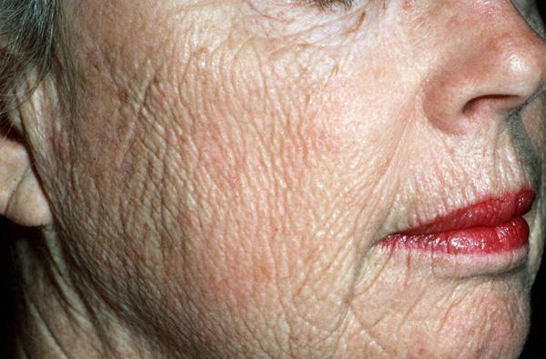 Возрастное истончение кожи