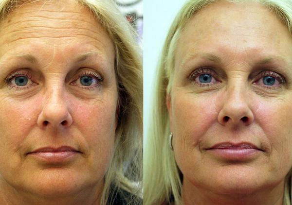 Фотография пациентки до и после применения Ботулакса