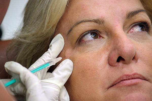 Введение ботулотоксина в мышцы лица