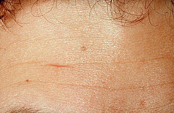 На фото показан шрам на лбу мужчины, подлежащий коррекции.