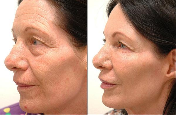Процедура позволяет бороться даже с глубокими морщинами на лице.