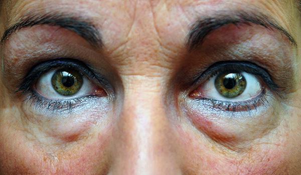 Ботокс при глазной грыже