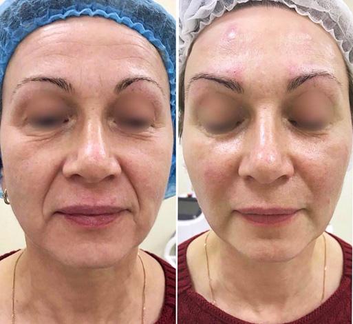 Комплексное устранение морщин на лице