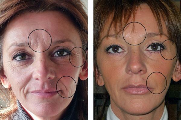 Эффект от Ботокса на лице