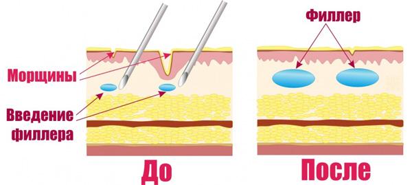 Механизм действия филлеров с гиалуроновой кислотой