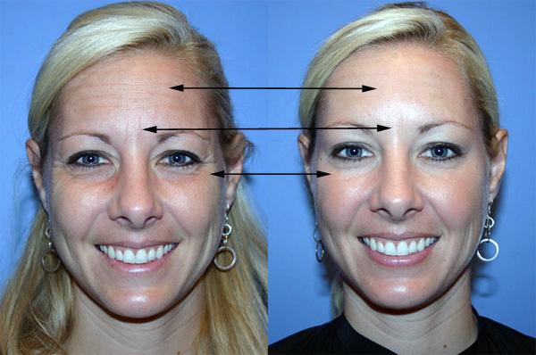 Зоны на лице, где чаще применяют ботулотоксин
