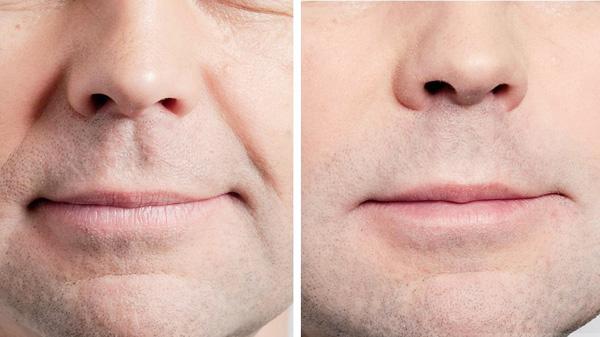 Устранение носогубных морщин гиалуроновой кислотой