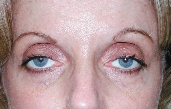 Введение ботокса в мыщцы второго века для создания симметрии глаз при птозе
