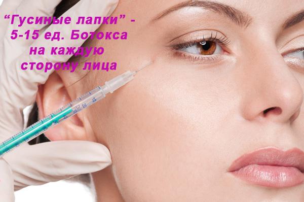Стандартное количество единиц препарата ботулотоксина в уголки глаз