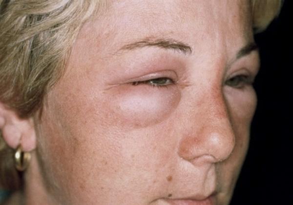 Отек лица после инъекций Ботокса