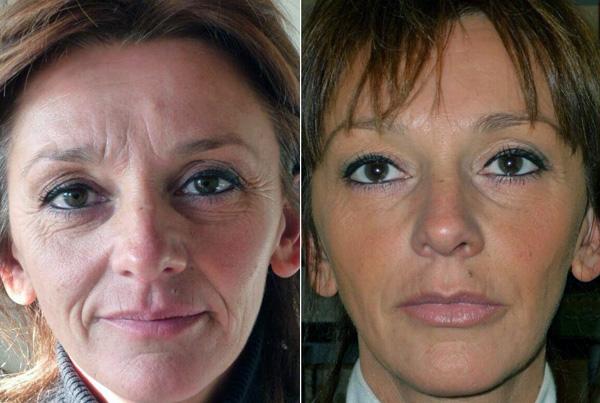 Комплексное устранение морщин на возрастной коже