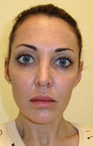 """Эффект """"восковой маски"""" при избыточном применении ботулотоксина"""
