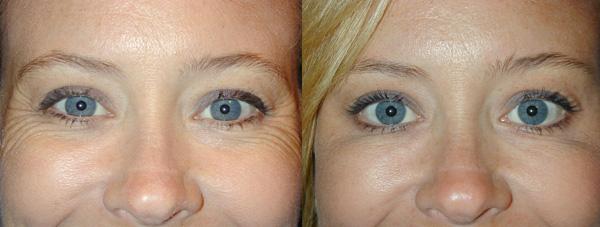 Устранение морщин в уголках глаз