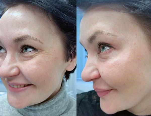 Коррекция мимических морщин в уголках глаз ботоксом (до и после)