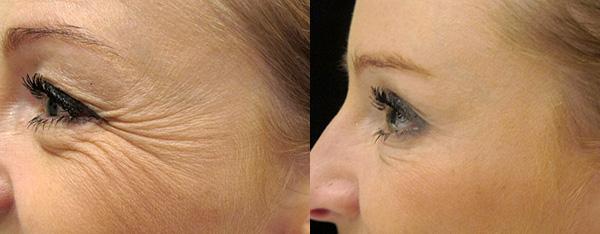 Устранение морщин в уголках глаз и в верхней части щек (до и после введения ботокса)