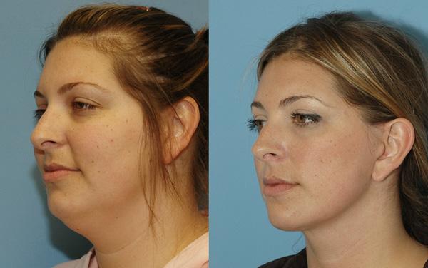 Похудение в молодом возрасте, как правило, не приводит к обвисанию кожи