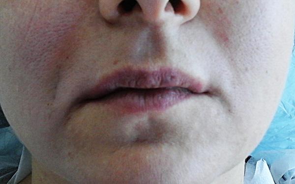 Опущение уголка рта после введения ботокса