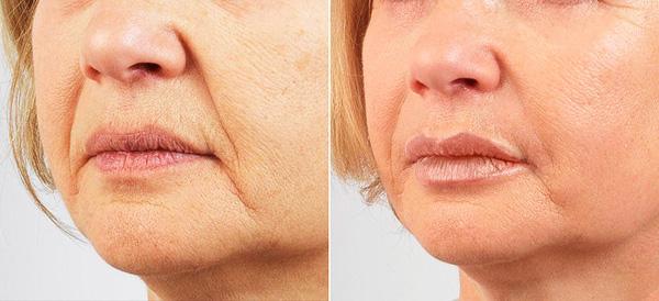 Уменьшение носогубных морщин градиентной формы с помощью ботокса