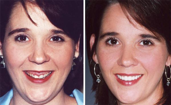Уменьшение выраженности носогубок после коррекции десневой улыбки