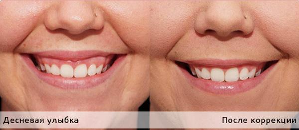 Влияние коррекции десневой улыбки на носогубные морщины