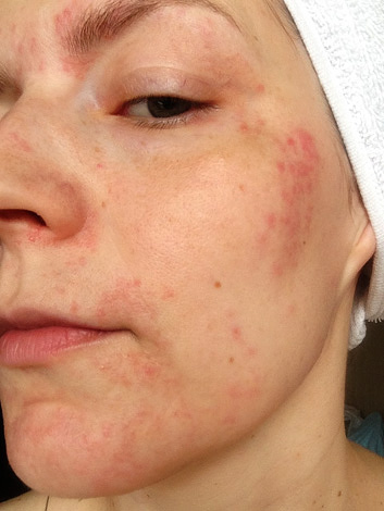 Аллергическая реакция на ботокс