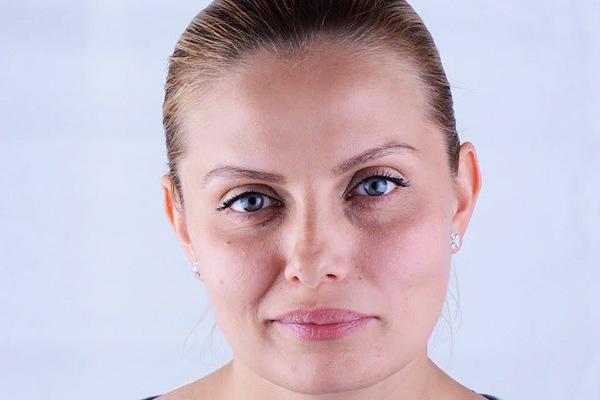 Асимметрия лица как следствие ботулинотерапии