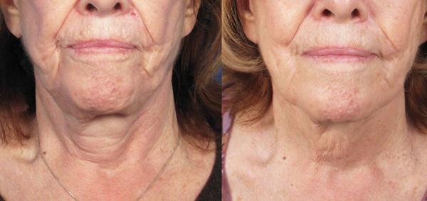 Повышение упругости кожи с помощью препаратов ботулотоксина
