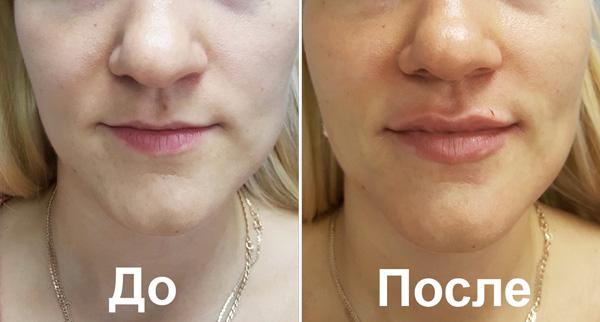 Увеличение губ филлерами (до и после)