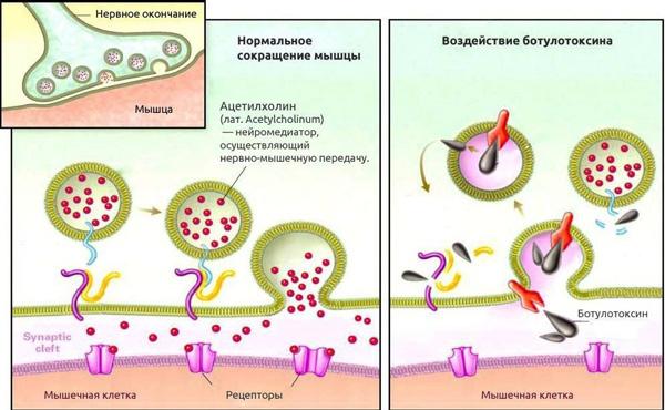 Действие ботулотоксин на мышцу
