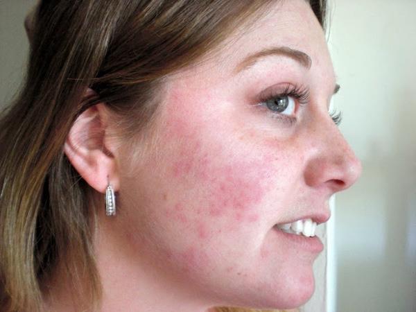 Аллергическая реакция на лактозу, входящую в состав Диспорта