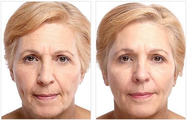 Применение Диспорта: фотография до и после