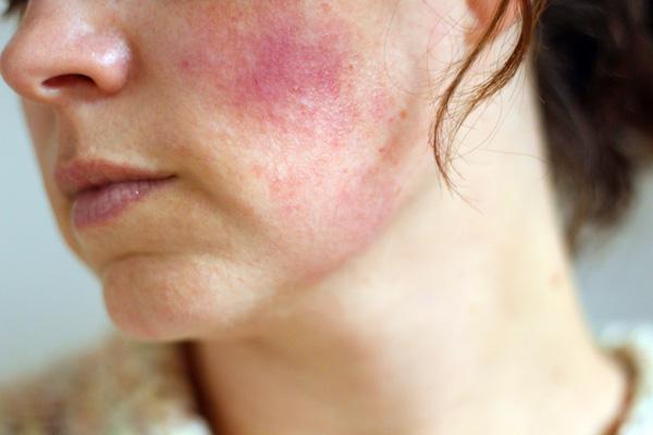 Аллергия на препараты ботулотоксина