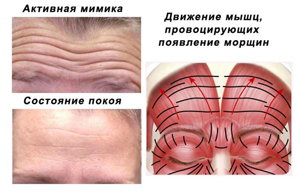 Мышцы, провоцирующие появление горизонтальных морщин на лбу