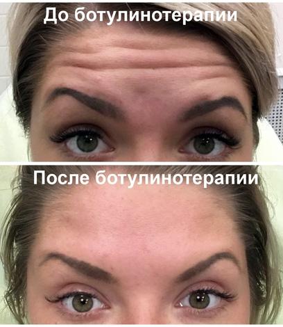 Ботокс против морщин на лбу (фотографии до и после процедуры)