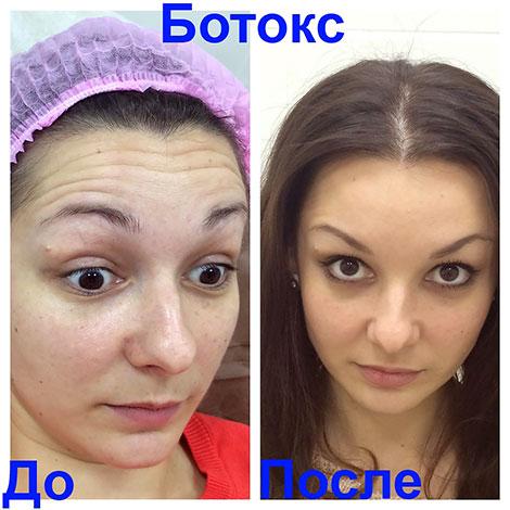 Устранение динамических морщин на лбу ботоксом (до и после процедуры)