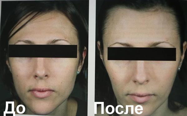 Чрезмерное удлинение и сужение лица после ботокса