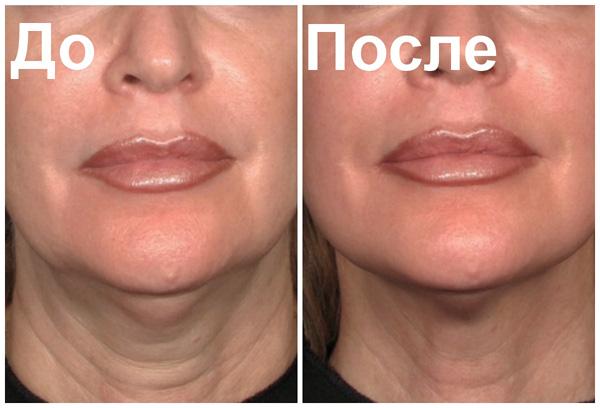 Сглаживание морщин на шее препаратами ботулотоксина