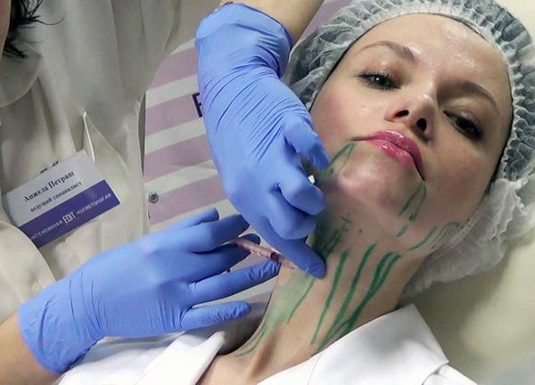 При коррекции овала лица ботоксом важна точность введения препарата
