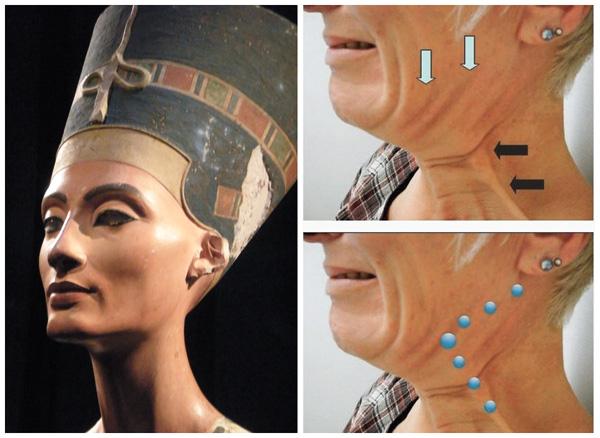Лифтинг Нефертити, места инъекций