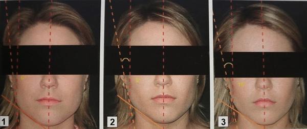 Коррекция овала лица Ботоксом