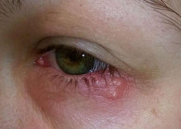 Воспаления, раны в области глаз являются противопоказанием к ботулинотерапии в данной области
