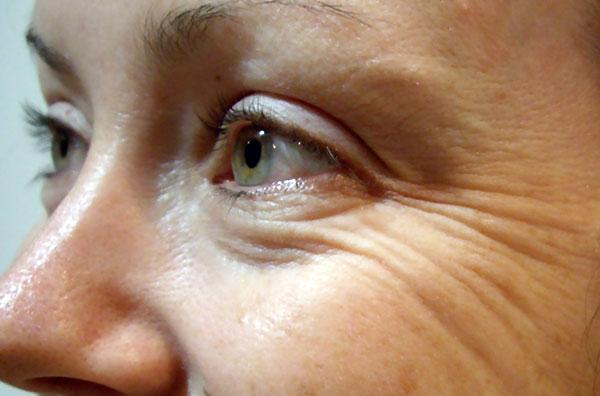 Гусиные лапки - морщины, которые можно устранить ботоксом