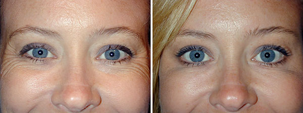 Устранение морщин в области глаз (состояние до и после процедуры)