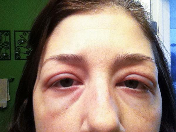 Отечность глаз после ботулинотерапии