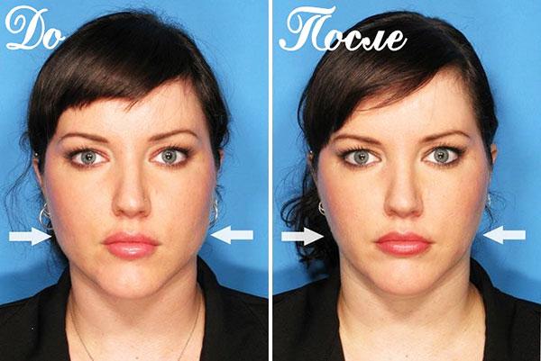 Корректировка овала лица ботоксом
