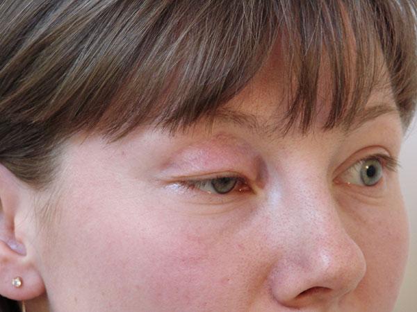 Птоз века - побочный эффект ботулинотерапии