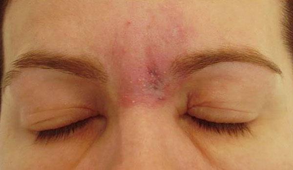Аллергия после ботокса